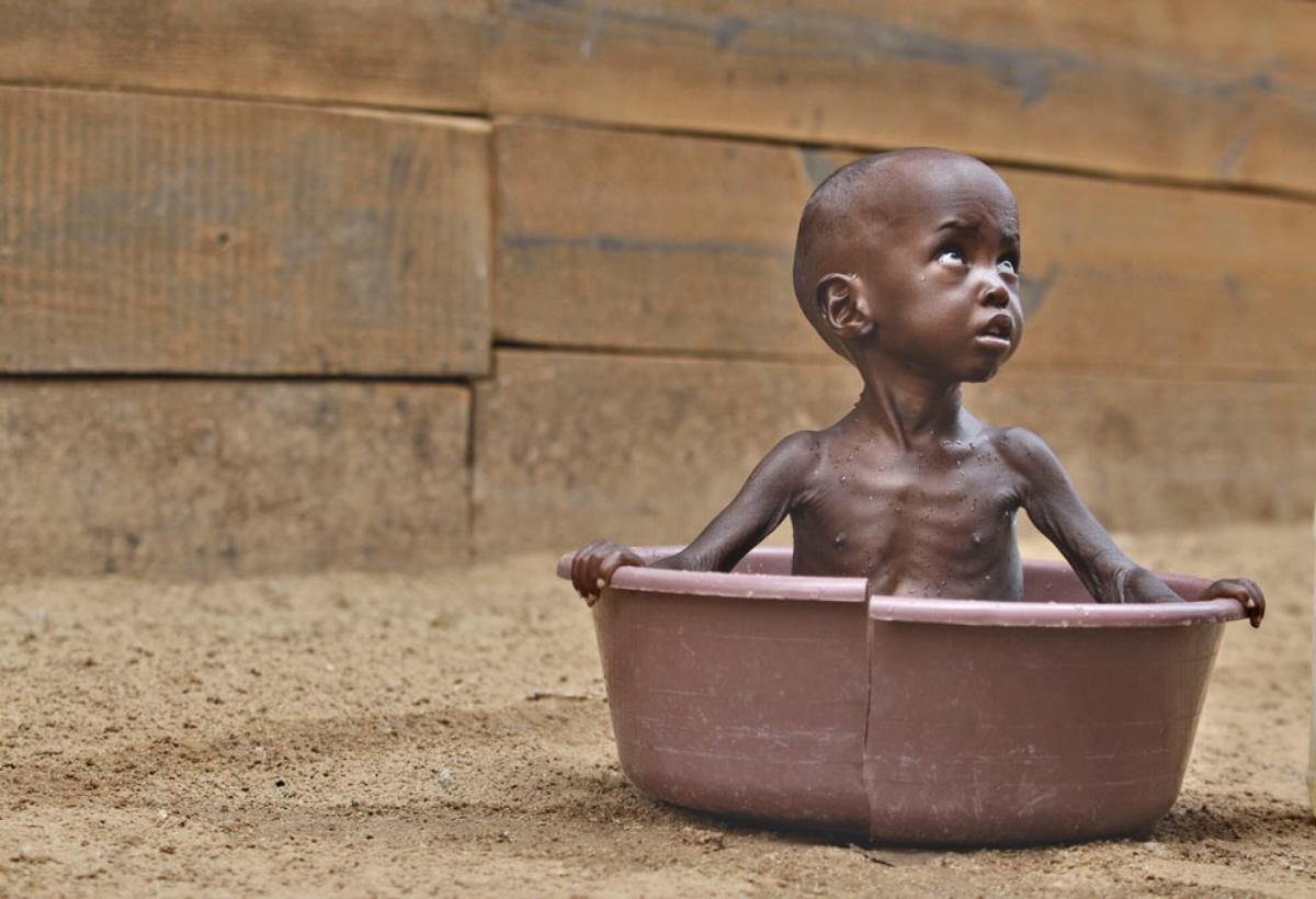 starvation in africa Did you know that every 12 seconds a child dies of starvation  in africa, thousands of children die every year due to illnesses from drinking contaminated water.